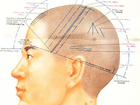Craniopuntura Chinesa e Seus Benefícios