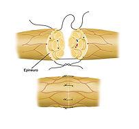 Lesão Traumatica do Nervo Periferico.jpg