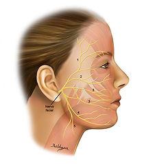 Lesão do Nervo Facial.jpg