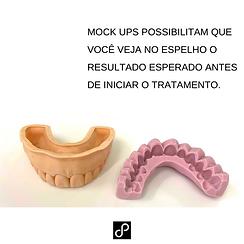 estetica dental no tatuape.png