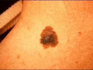 This is a skin cancer