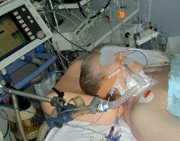 Elativ orthopädisches Kissen mit Extension Streckung im Nackenbereich gegen Nackenschmerzen Berg 02
