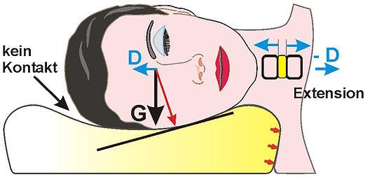 Elativ orthopädisches Kissen gegen Nackenschmerzen. Wie funktioniert die Extension.