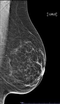 mammographie profil.jpg