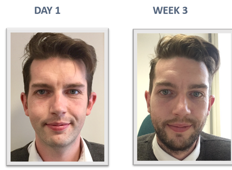 Moustache competition is getting fierce
