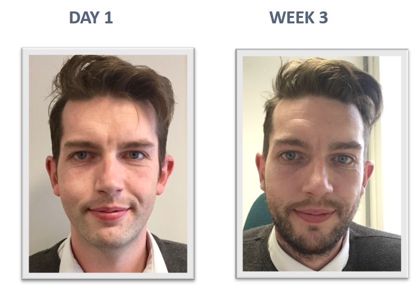 Movember competitor: Peter B