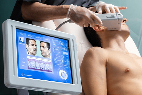 digital-hifu-treatment-interface-patient-background-middle-aged-man-having-cosmetic-facial
