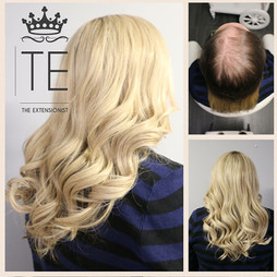 Female Pattern, Voguepearl hair loss replacement used