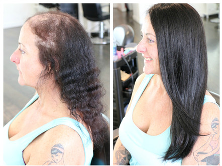 Female pattern balding, voguepearl hair loss replacement used