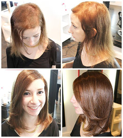 Trichotillomania. Voguepearl hair loss replacement used to cover trigger sites.