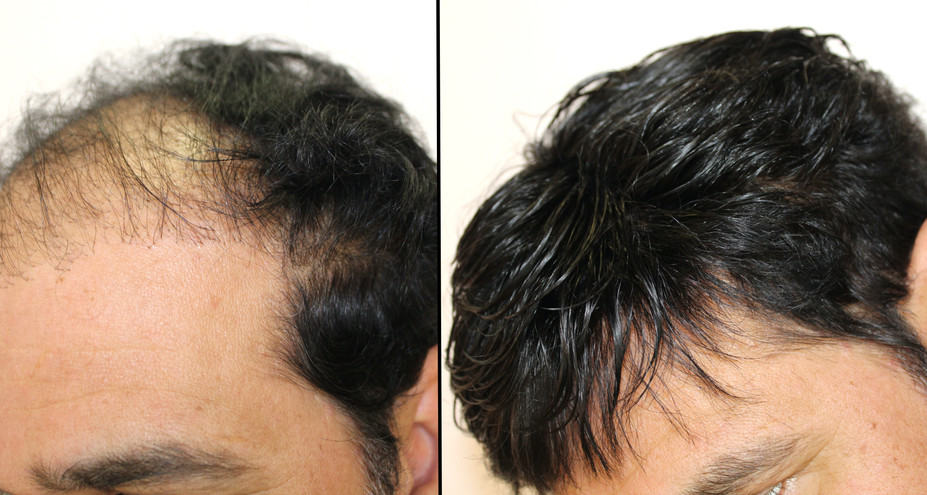 the extensionist mens hair replacement