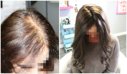 Female pattern balding, Voguepearl used