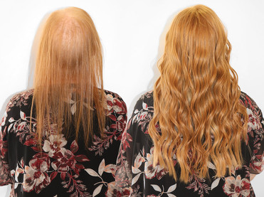 Diffuse Alopecia, Voguepearl hair replacement & peekaboo extensions added