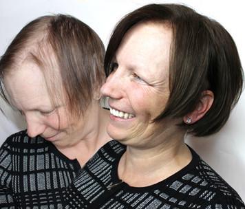 Post Chemotherapry hair, used custom VP hair closure