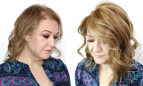 Diffuse Alopecia, HairCrown™ clip-on closure used