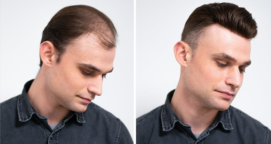 the extensionist hair replacement hair loss edmonton
