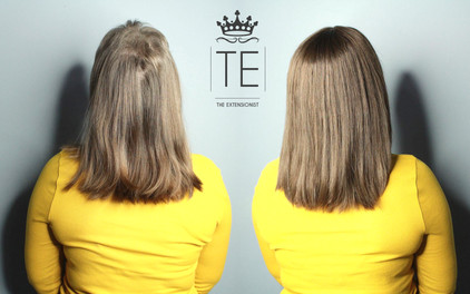 Trichotillomania, Voguepearl hair loss replacement used