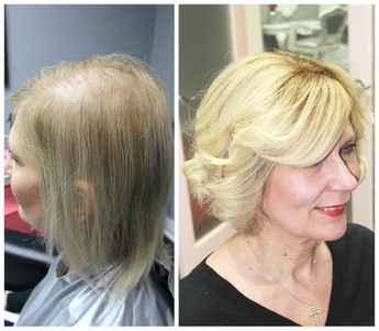 Diffuse Alopecia, voguepearl hair loss replacement used