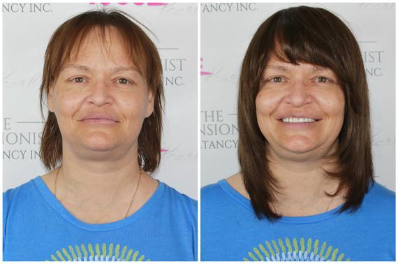 Diffuse alopecia. Voguepearl haiir loss replacement used