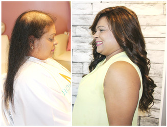 Female Pattern, voguepearl hair loss replacement used~