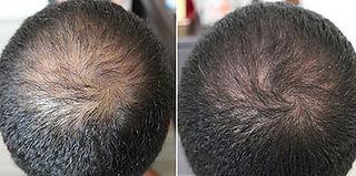 growth_factors_hair_3.jpg