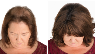 Trichotillomania, Voguepearl hair loss replacement used to cover trigger sites