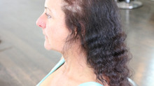 The Psychology of Hair Loss in Women
