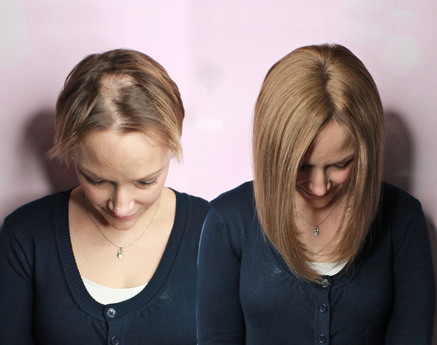 Alopecia Areata, voguepearl hair loss replacement used