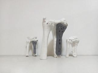 prototipazione rapida protesi rapide sta