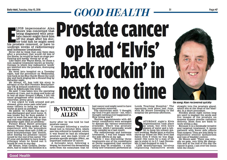 Daily Mail article on prostate cancer and seed or LDR brachytherapy