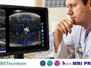 BXTACCELYON BECOMES GLOBAL DISTRIBUTION PARTNER FOR NEW ONLINE PROSTATE MRI SELF-LEARNING TOOL, MRI
