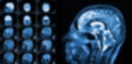 Tumores pituitarios (tumores de la hipófisis)