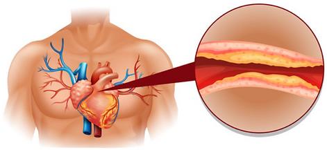 Enfermedades de los lípidos o grasas