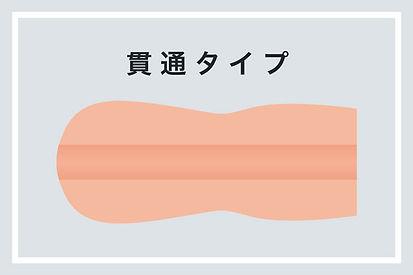 img-kantsu-type.jpg