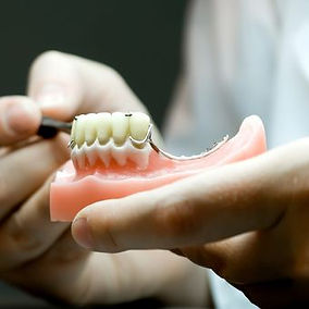 réparation prothése dentaire liège