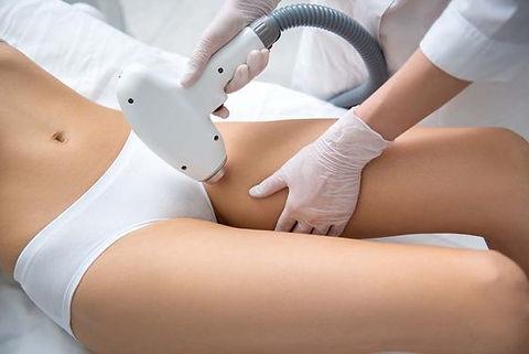 Jonge dame op bikini laserepilatie procedure