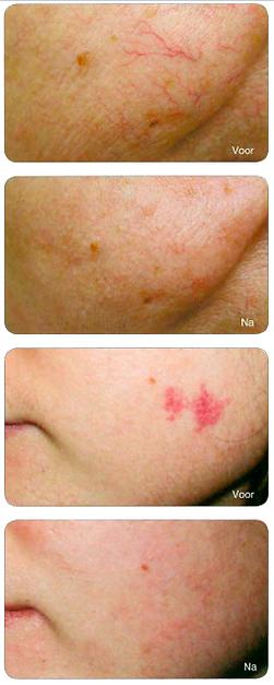 Vasculaire laser adertherapie