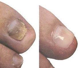 Pédi Nails Glons Bassenge Oupeye