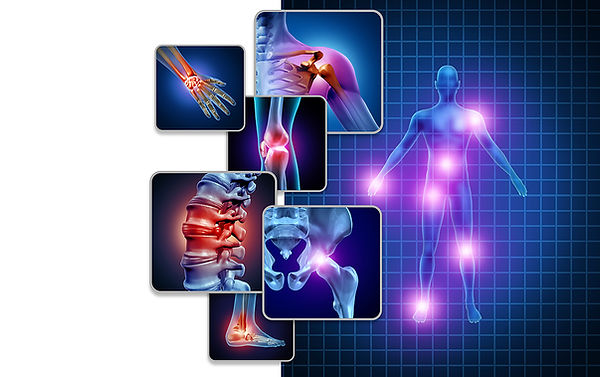 bigstock-Joint-Body-Pain-Concept-As-Ske-