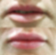 lip correction.jpg