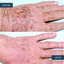 B&A pigmentation hand.png