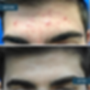 B&A acne forehead.png