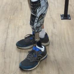 Ed G NEW LEG!