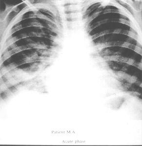 Case 4.jpg