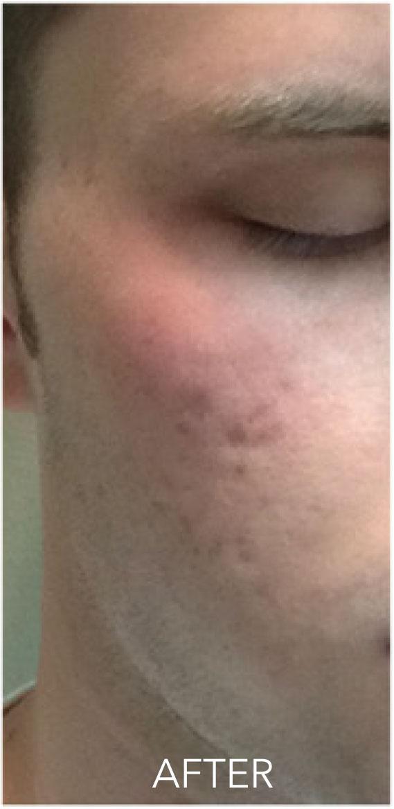 acne-04