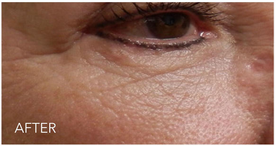 under-eye-02