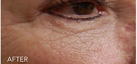under-eye-02.jpg