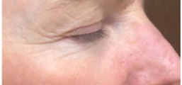 acne-02.jpg