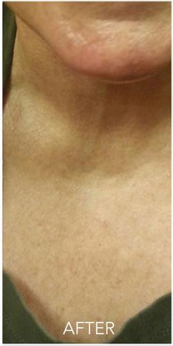 neck-area-02