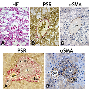Routine, special and immunohistochemical staining in ,odel of liver fibrosis